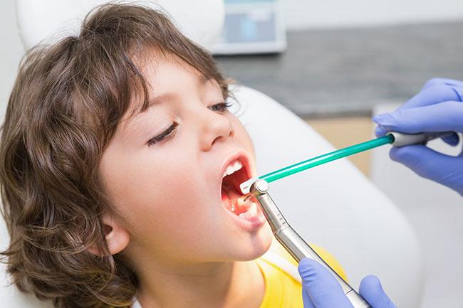 دندانپزشکی کودکان -دکتر کبریائی یزد,آرامبخشی در دندان پزشکی
