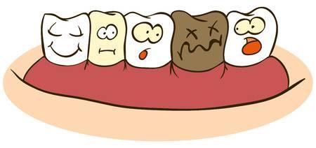 پوسیدگی دندانهای شیری,دندانپزشکی کودکان و نوجوانان در یزد,عاداتی که دندانها را خراب می کنند