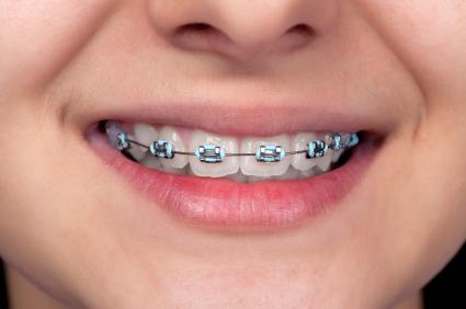 مشکلات ارتودونسی,ارتودونسی,دکتر کریایی,دندانپزشکی کودکان در یزد,