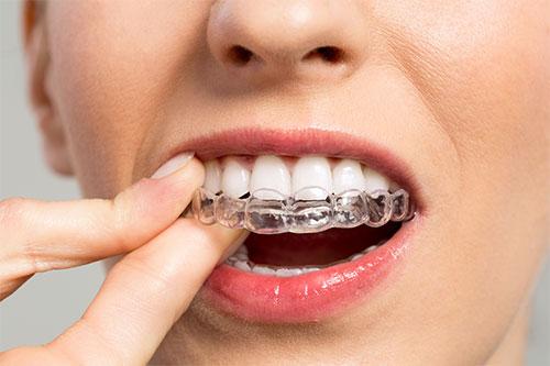 ارتودنسی در کودکان, دکتر کبریایی, دندانپزشکی در یزد,