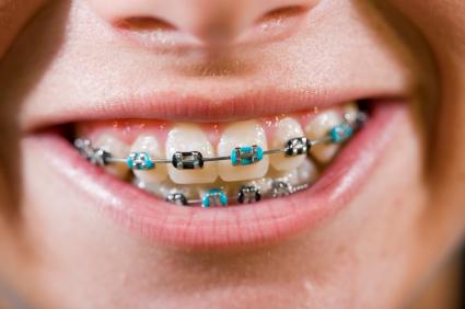 بهترین سن ارتودنسی دندان کودکان,دکتر کبریایی,دندانپزشکی در خواب,