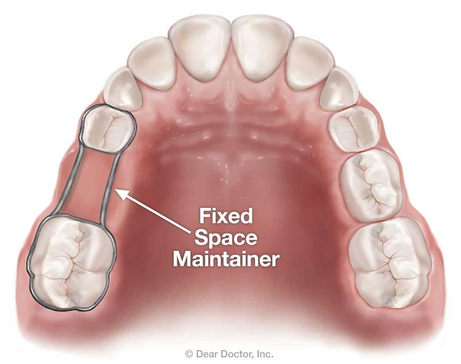 فضانگهدار در دندانپزشکی, دکتر کبریایی, دندانپزشکی در یزد,
