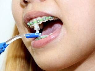 بهداشت دندان,مشکلات ارتودونسی,ارتودونسی,دکتر کریایی,دندانپزشکی کودکان در یزد,