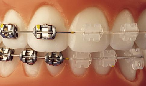 ortodoncia,مشکلات ارتودنسی,ارتودونسی,دکتر کریایی,دندانپزشکی کودکان در یزد,