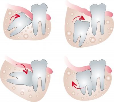کشیدن دندان عقل,wisdon tooth,دکتر کبریایی,دندانپزشکی در یزد,