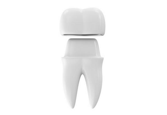 dental-crown,روکش دندان,دکتر کبریایی.دندانپزشکی کودکان در یزد
