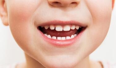 دندانهای کودکان,kids-teeth,
