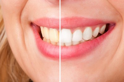 teeth-cleaning,تمیز کردن دندانها,