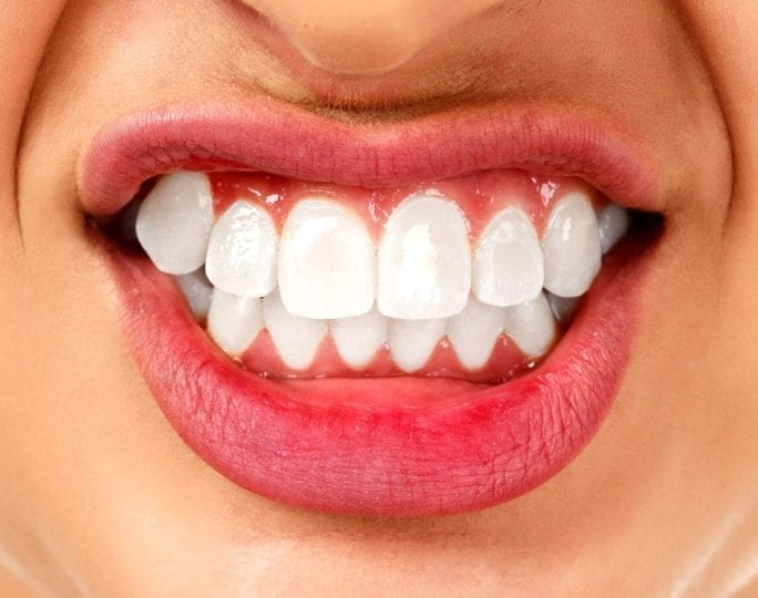 Grinding of the teeth,دندان قروچه