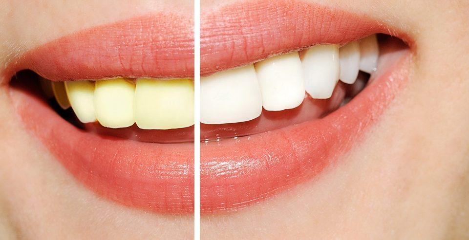 yellowing-teeth,زرد شدن دندان ها,teeth,دلایل زرد شدن دندان
