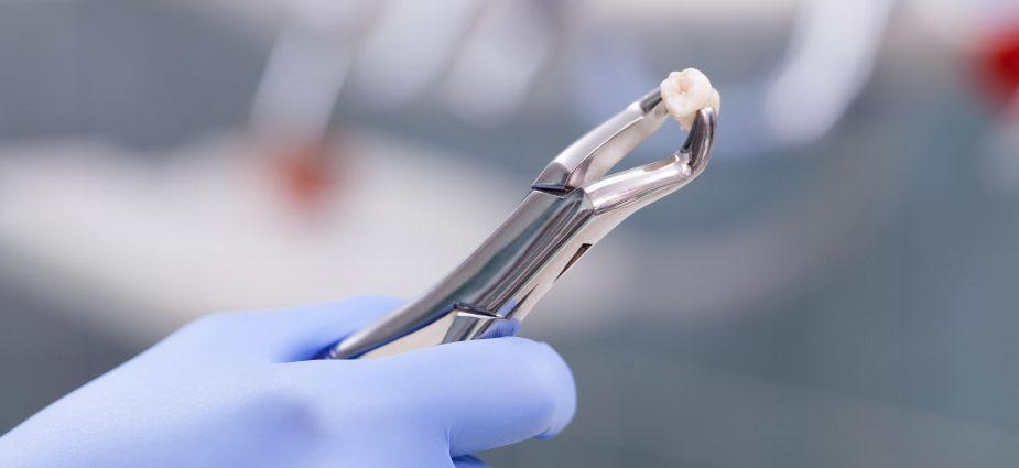 tooth-extraction,کشیدن دندان,بعد از کشیدن دندان چه بخوریم