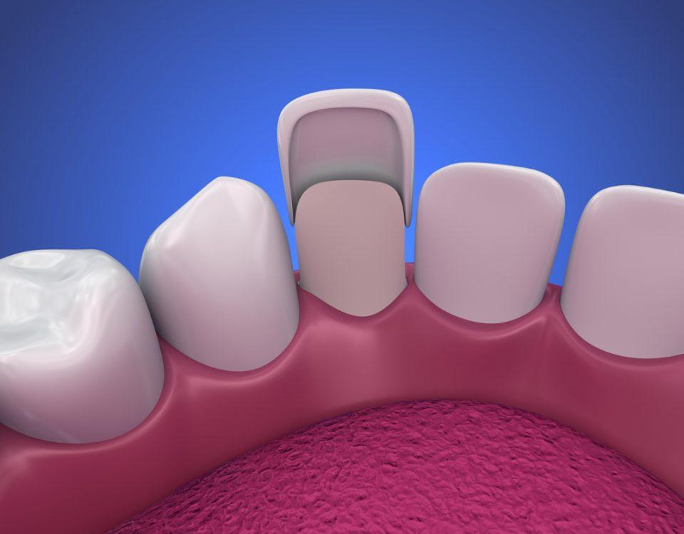 teeth-laminate,لمینت سرامیکی,