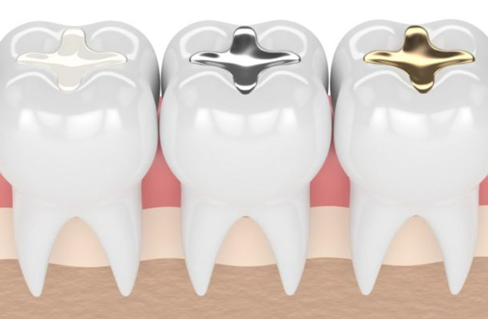 Teeth-Fillings,پرکردن دندان