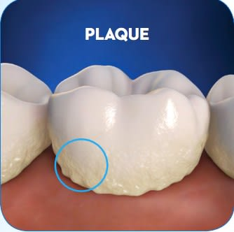 پلاک دندان,tooth plaque ,