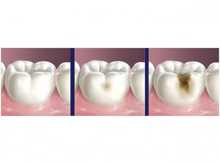 پوسیدگی دندان,tooth decay,پیشگیری از پوسیدگی دندان کودک