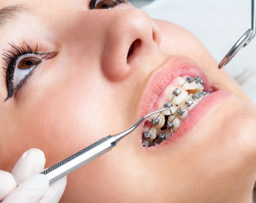 orthodensi-braces,ارتودنسی دیمون,ارتودنسی خود تنظیم