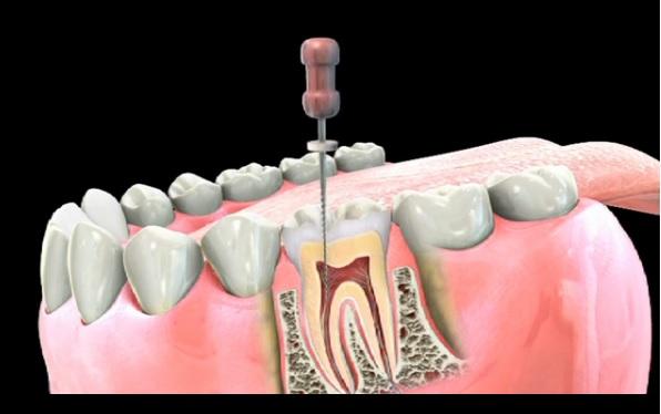درمان کانال ریشه,تحلیل ریشه دندان,توصیههای کلیدی پس از عصب کشی دندان