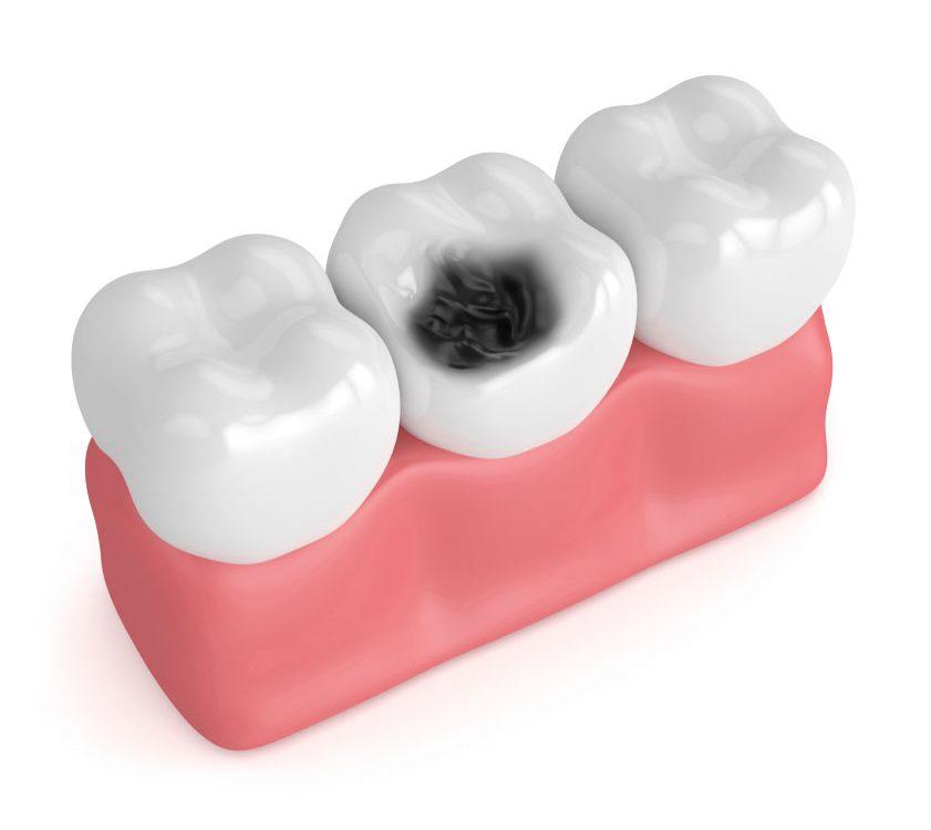 پوسیدگی دندان,tooth decay