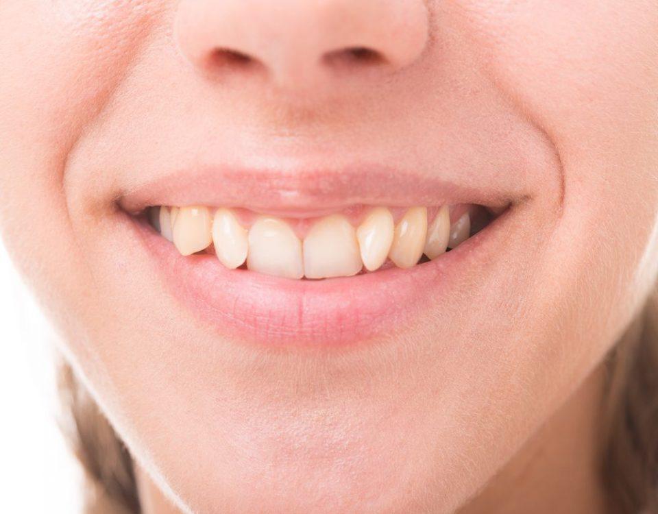 teeth,علت کج شدن دندان,