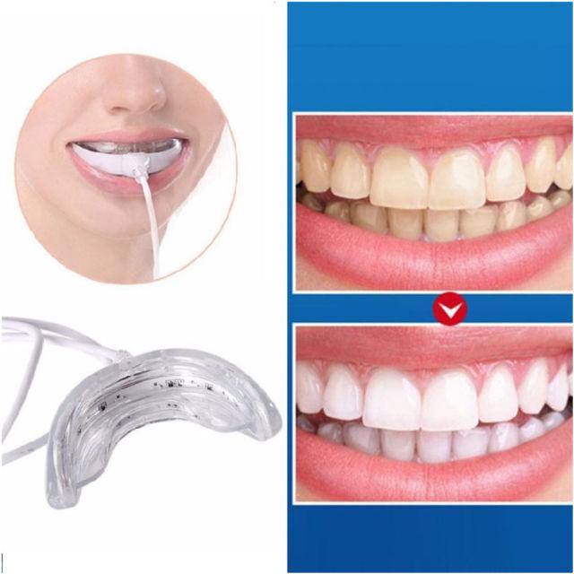 سفید کردن دندانها , teeth whitening ,