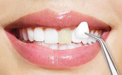 ونیر دندان,veneers,روکش دندان,مراحل نصب لمینت دندان