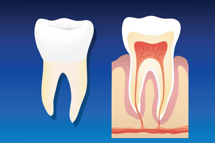 root-canal,توصیههای قبل از عصب کشی دندان,عصب کشی
