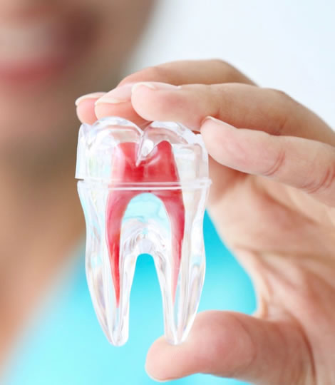 tooth with root canal therapy ,root canal treatment,نکات پس از عصب کشی دندان,عصب کشی,