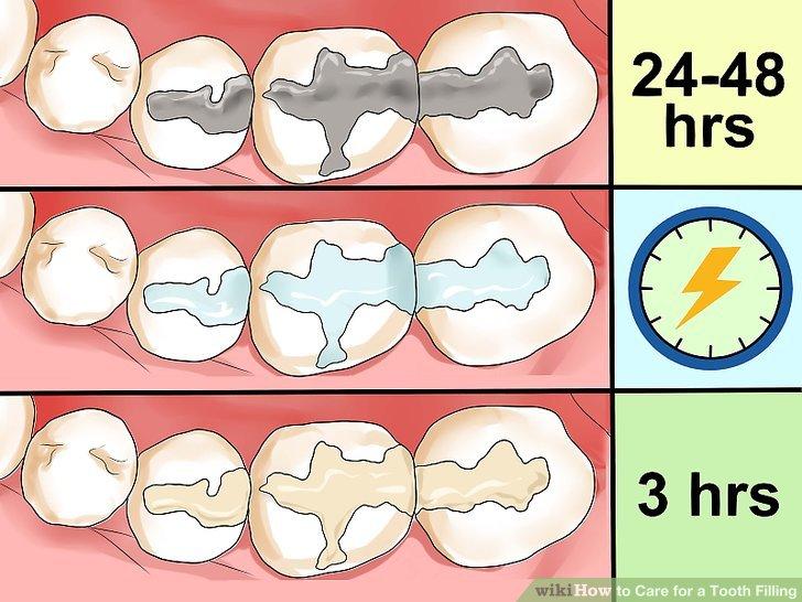 پرکردن دندان , دندان های پر شده,dental_fillings