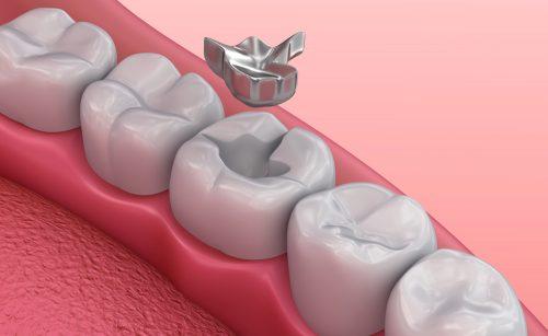 درد بعد از ترمیم دندان,tooth filling,