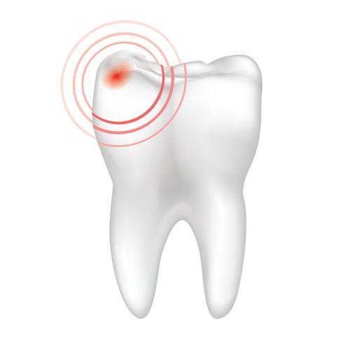 انواع دندان درد,tooth,درد دندان,