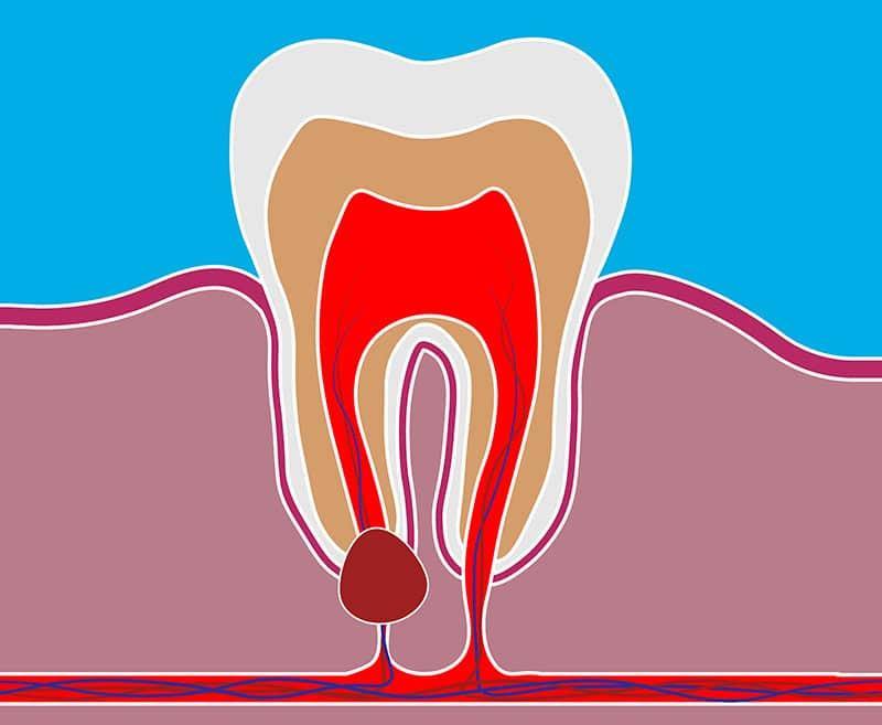 کیست ریشه دندان , کیست دندان,Dental-Cyst