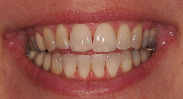 سیاه شدن بین دو دندان,black-between-two-teeth