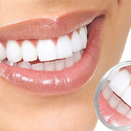 دندانپزشکی زیبایی,پیشگیری از کرم خوردگی دندان,smile