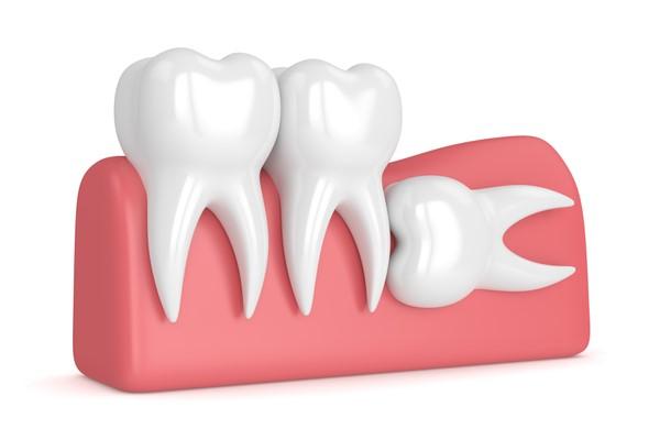 دندان عقل نهفته,wisdom teeth,علت درد دندان عقل