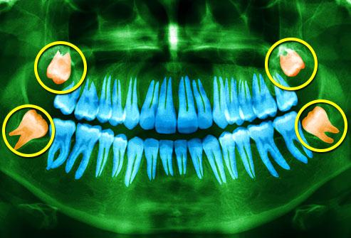 دانستنی های دندان عقل, wisdom tooth