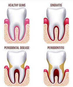 بیماری پریودنتیت,periodontal-treatments