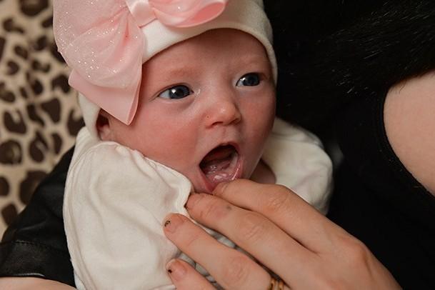 دندان نوزادی