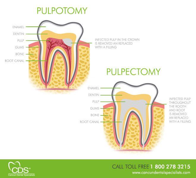 pulpectomy