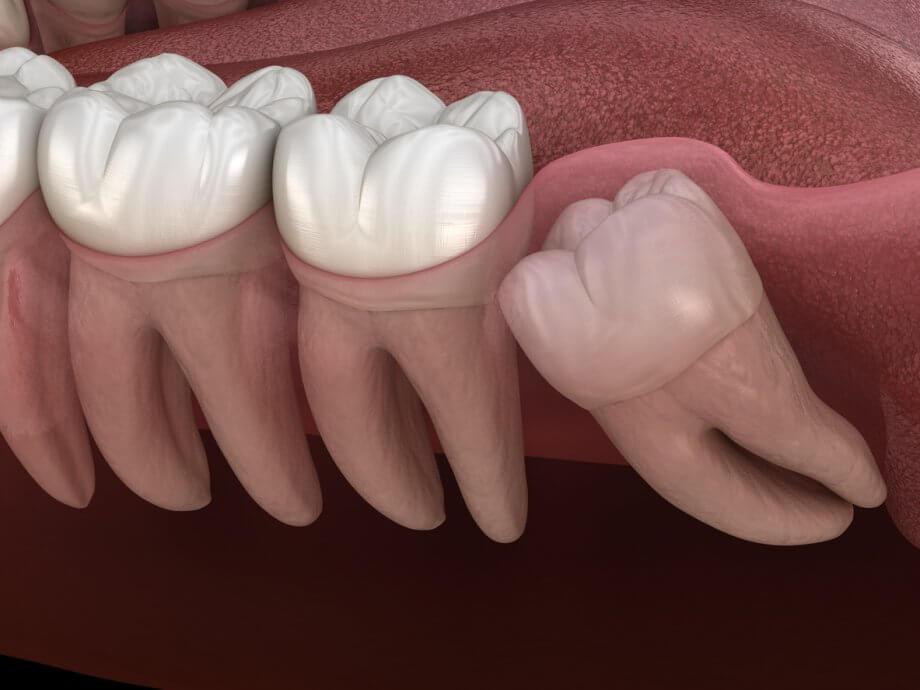 Wisdom-Teeth,فایده های دندان عقل,دندان عقل نهفته