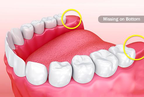 WisdomTeeth,فایده های دندان عقل
