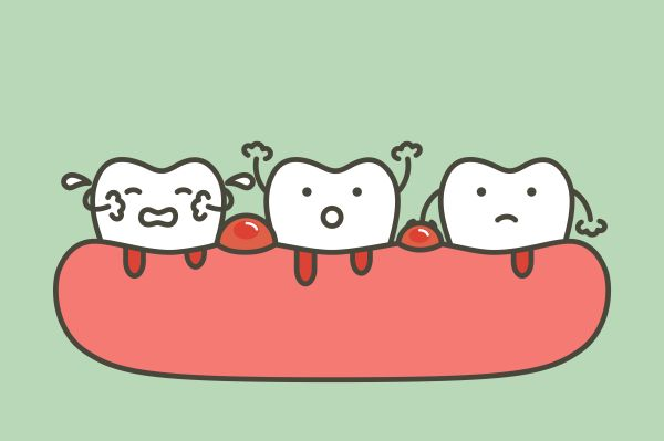 tooth-abscess,آبسه دندان چیست,آبسه دندان