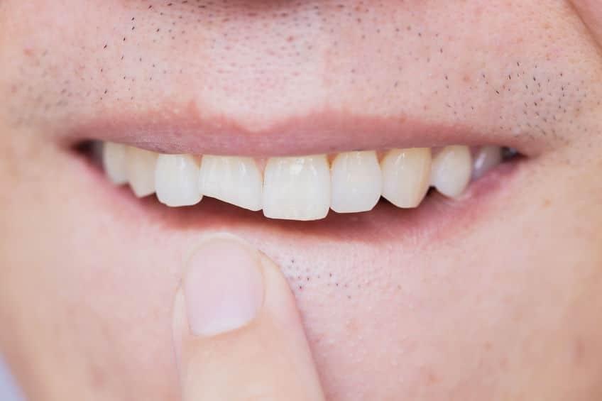 دندان ضربه دیده