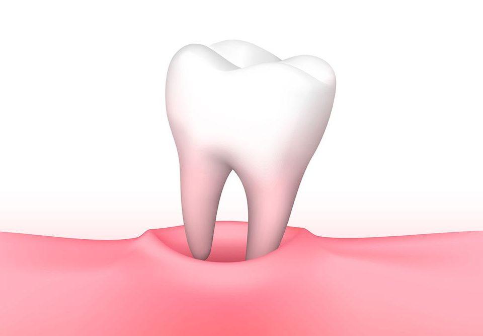 توصیه های بعد از کشیدن دندان,Tooth_Extraction