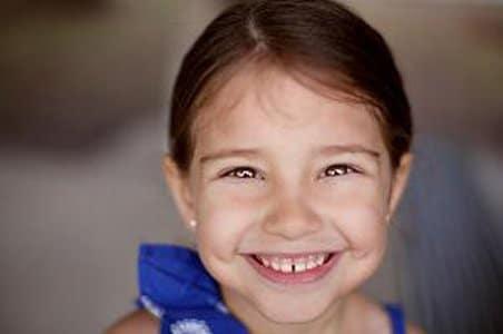tooth gap,علت فاصله بین دندان ها,فاصله بین دندان ها
