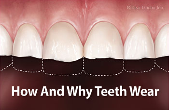 فرسودگی و ساییدگی مینای دندان,teeth wear