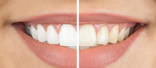 لکه های سفید روی دندان,white-spot-teeth