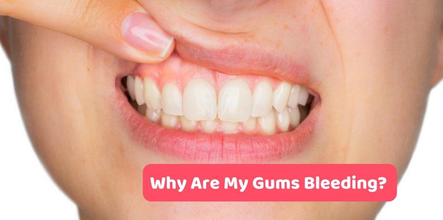 خون ریزی لثه هنگام مسواک زدن,-Gums-Bleeding