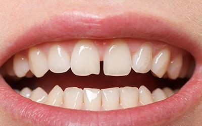 بستن فواصل بین دندان,teeth gap