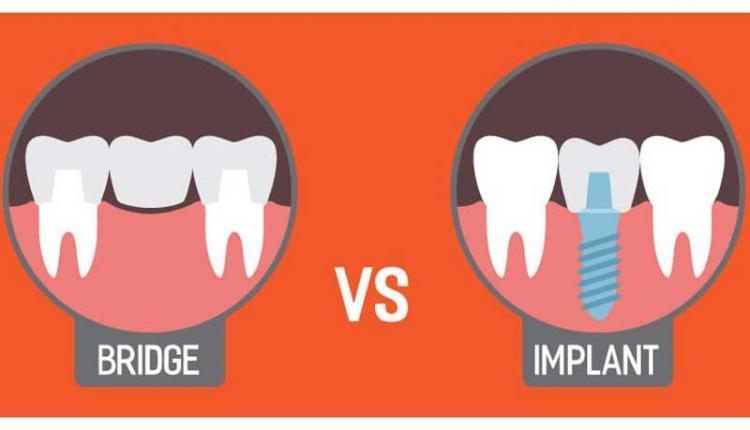 کدام نوع بریج دندان بهتر است؟