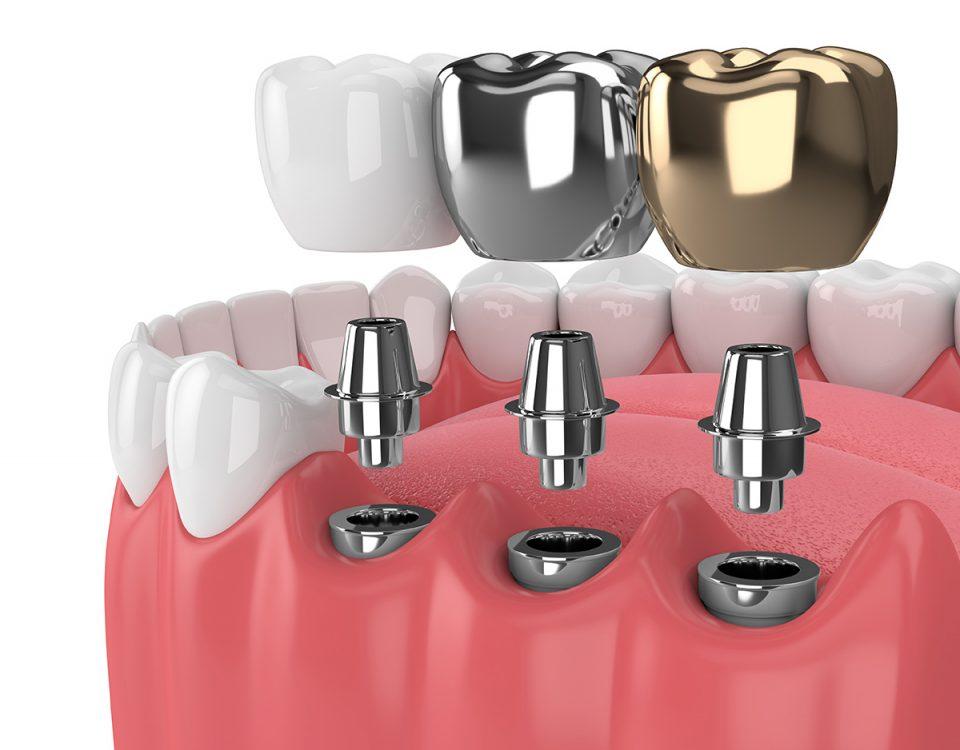 ایمپلنت دندان, Teeth Implants